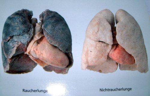 Was im Körper passiert, wenn du mit dem Rauchen aufhörst | BARMER