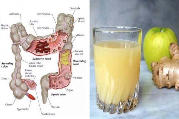 عصير لتنظيف القولون من 3 مكونات : كيف تطرد عدة كيلوات من السموم من جسمك