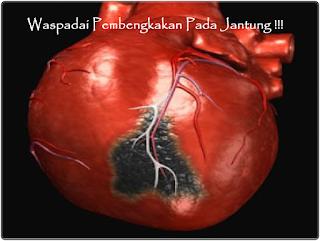 Obat Jantung Bengkak Herbal Paling Ampuh