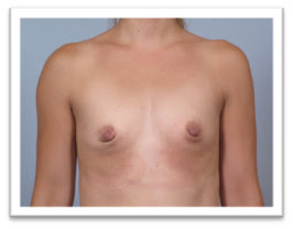 before-breast-implant
