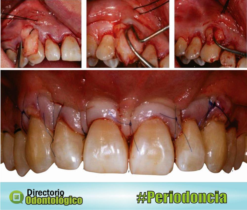cirugia-periodoncia