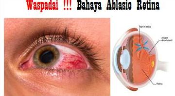 Asuhan Keperawatan Dan Biaya Operasi Penyakit Ablasio Retina ( Retina Mata Lepas ) Di Rumah Sakit