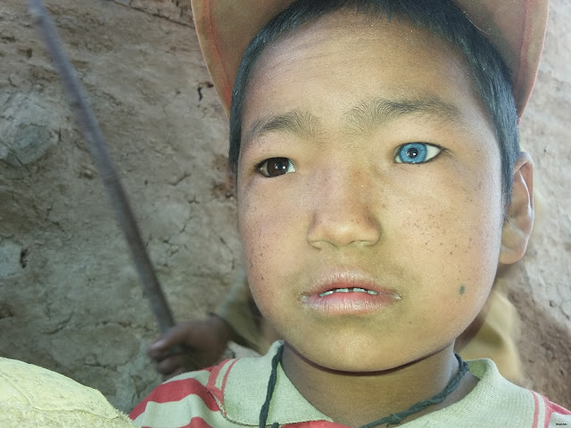 child with trachoma