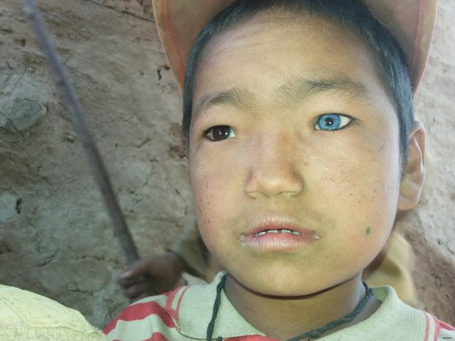 nepal eliminates trachoma