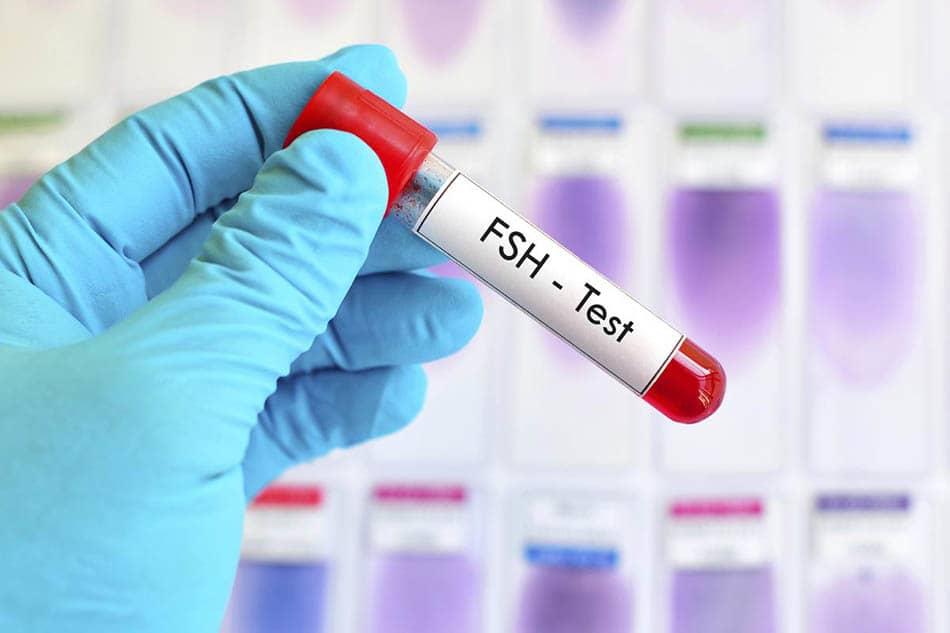 Fsh testi, G, Gebelikte fsh düşüklüğü, Gebelikte fsh yüksekliği, Kadın doğum hormon testi, Hamilelikte Fsh hormonu, Gebelikte hormonlar, Hamilelik ve fsh,
