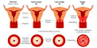 urutan stadium kanker serviks
