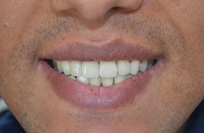 những điều nên biết về trồng răng sứ titan -6