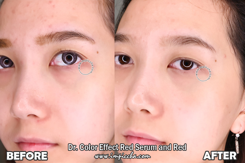 Before - After Dr. Color Effect Red Serum and Red Cream