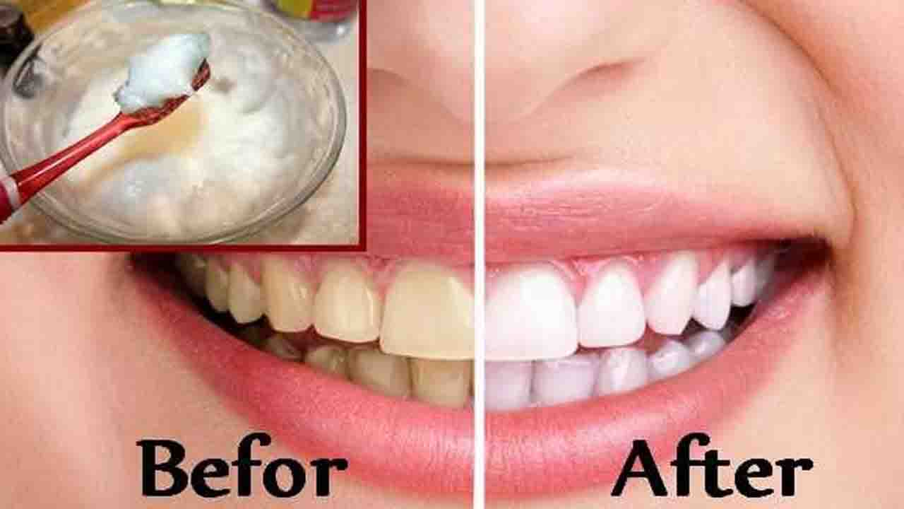 Summary Does Baking Soda Really Whiten Teeth Easy Way To