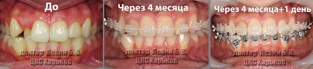 прикуса до лечения, четыре месяца брекеты на верхней челюсти и установка брекетов на нижней челюсти