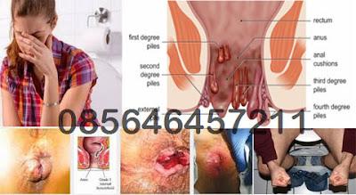 Apakah Itu Penyakit Wasir atau Hemorrhoid
