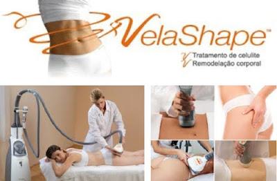 Velashape, um tratamento para a maldita celulite