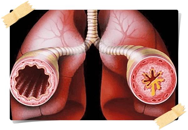 astımlı hastanın damarları