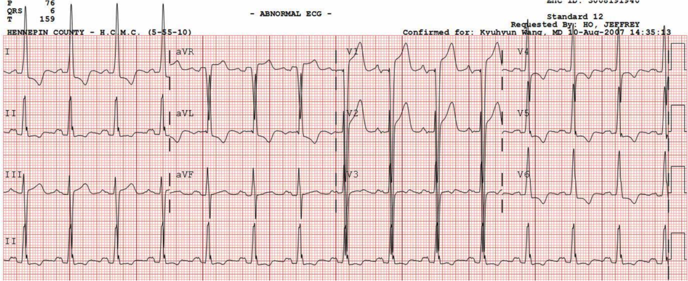 Dr. Smith's ECG Blog: LVH with secondary ST depression??