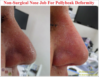 Pollybeak Deformity - Treatment of Pollybeak Deformity with nose filler - Non-surgical nose job for Pollybeak Deformity - Non-surgical nose job - Non surgical nose job with filler in İstanbul - Non-surgical rhinoplasty in İstanbul - Nose tip filler augmentation in İstanbul - Non-surgical rhinoplasty in İstanbul - Nose filler injection in Turkey - The 5 Minute Nose Job in İstanbul, Turkey - Non-surgical nose job in Istanbul - Non-surgical nose job istanbul - Nose filler injection Turkey - Injectable nose job - Liquid rhinoplasty