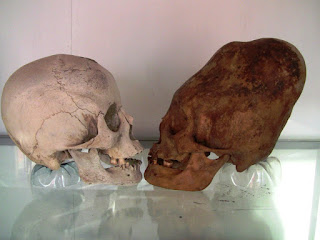 Star Child Skull