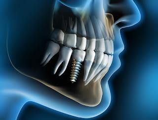 Cắm ghép implant có bị đau về sau không ?