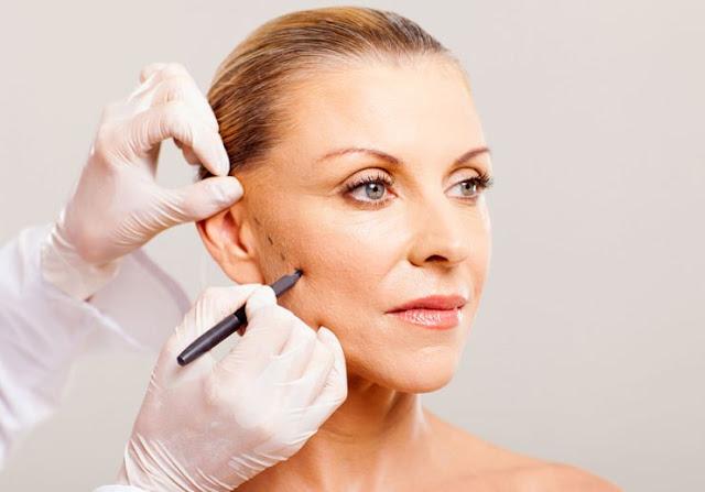 Phẫu thuật da mặt những lưu ý mà bạn cần phải biết