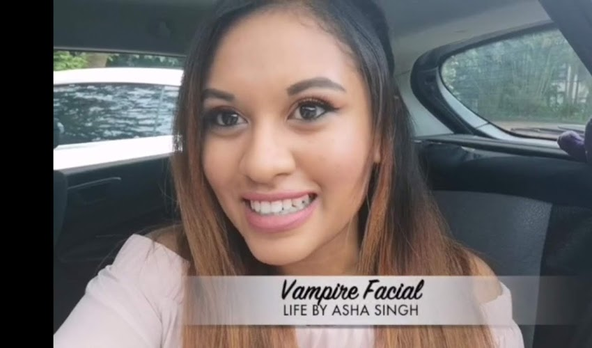 I TRIED THE VAMPIRE FACIAL (VIDEO)