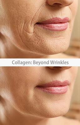 Collagen: Beyond Wrinkles