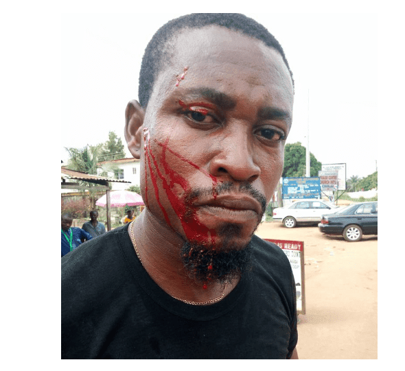 Nigerian MC accuses police officer of battering his face fatally because of  N100 bribe