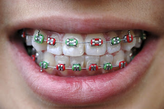 Smiling with Braces | Children's Dentist Suffolk County