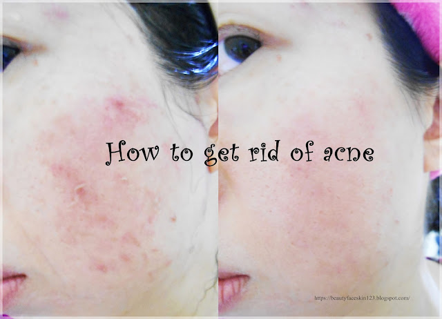How I get rid of acne&Asian skincare tips for acne prone skin