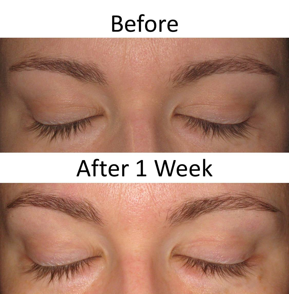 ee899a91c92 I've been using Unlimited Lashes for one week and as you can see not much  has happened. This product requires a few weeks to see results so I am  going ...