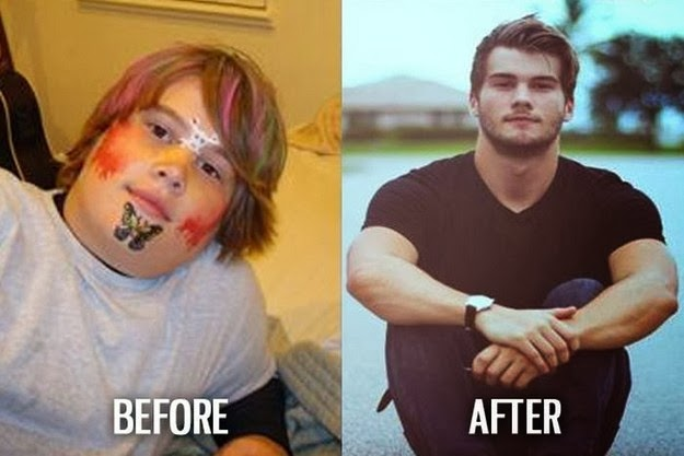 before and after photos 3