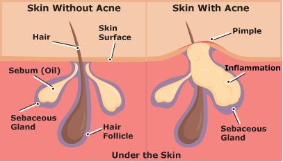 kulit-dengan-acne