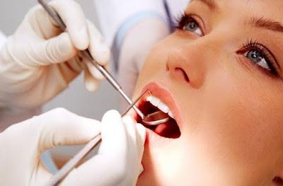 cara merawat gigi berlubang parah