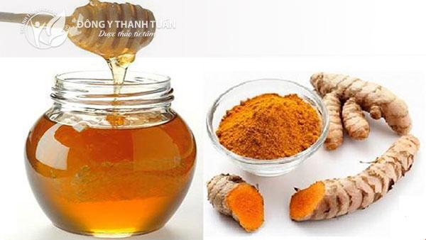 Nghệ vàng và mật ong là cách trị đau bao tử đơn giản