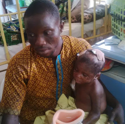 ogun government sponsors treatment of girl