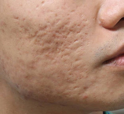 Điều trị sẹo rỗ bằng laser co2