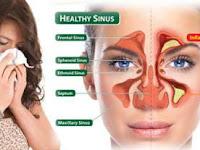Gejala sinusitis pada anak dan cara mengobatinya