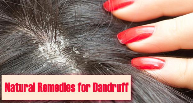 11 Natural Remedies for Dandruff - I Paleo Diet