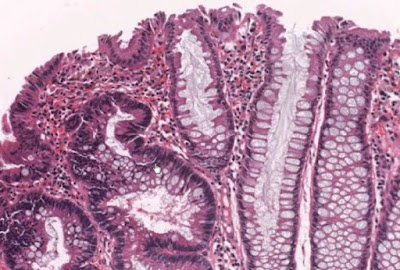 tubular adenoma of colon