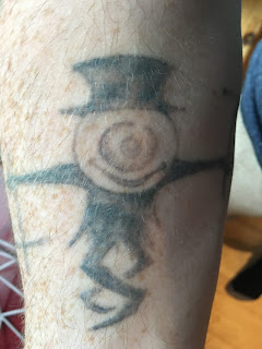 Tattoo fading after 4 q-switched sessions
