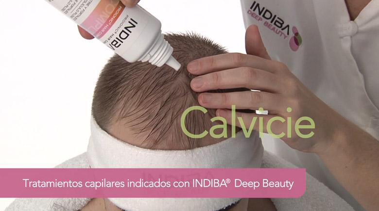 Tratamientos capilares Indiba