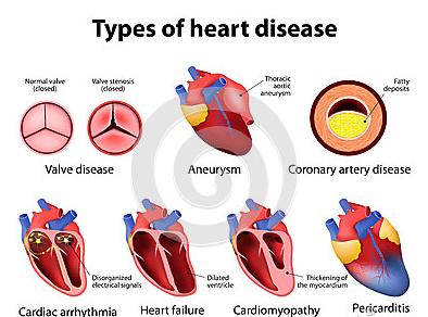 jenis macam penyakit jantung