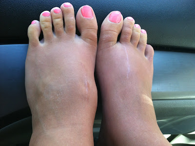 top of foot bump