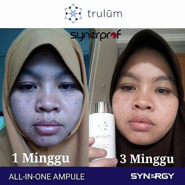 Jual Serum Penghilang Jerawat Trulum Skincare Taliabu Barat Kepulauan Sula