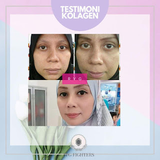 testimoni Collagen Powder Shaklee