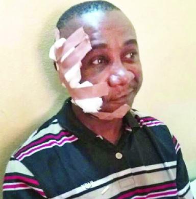 Catholic Priest Shot By Fulani Herdsmen