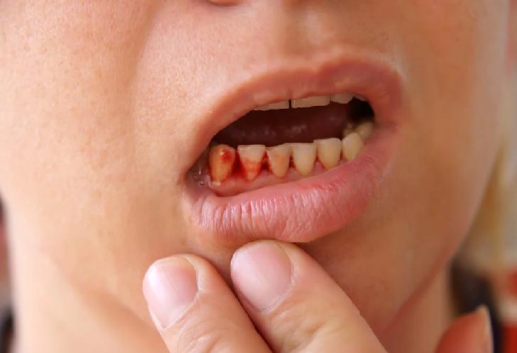 Natural treatment of bleeding gums