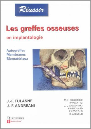Livre : Les greffes osseuses en implantologie - Jean-François Tulasne PDF