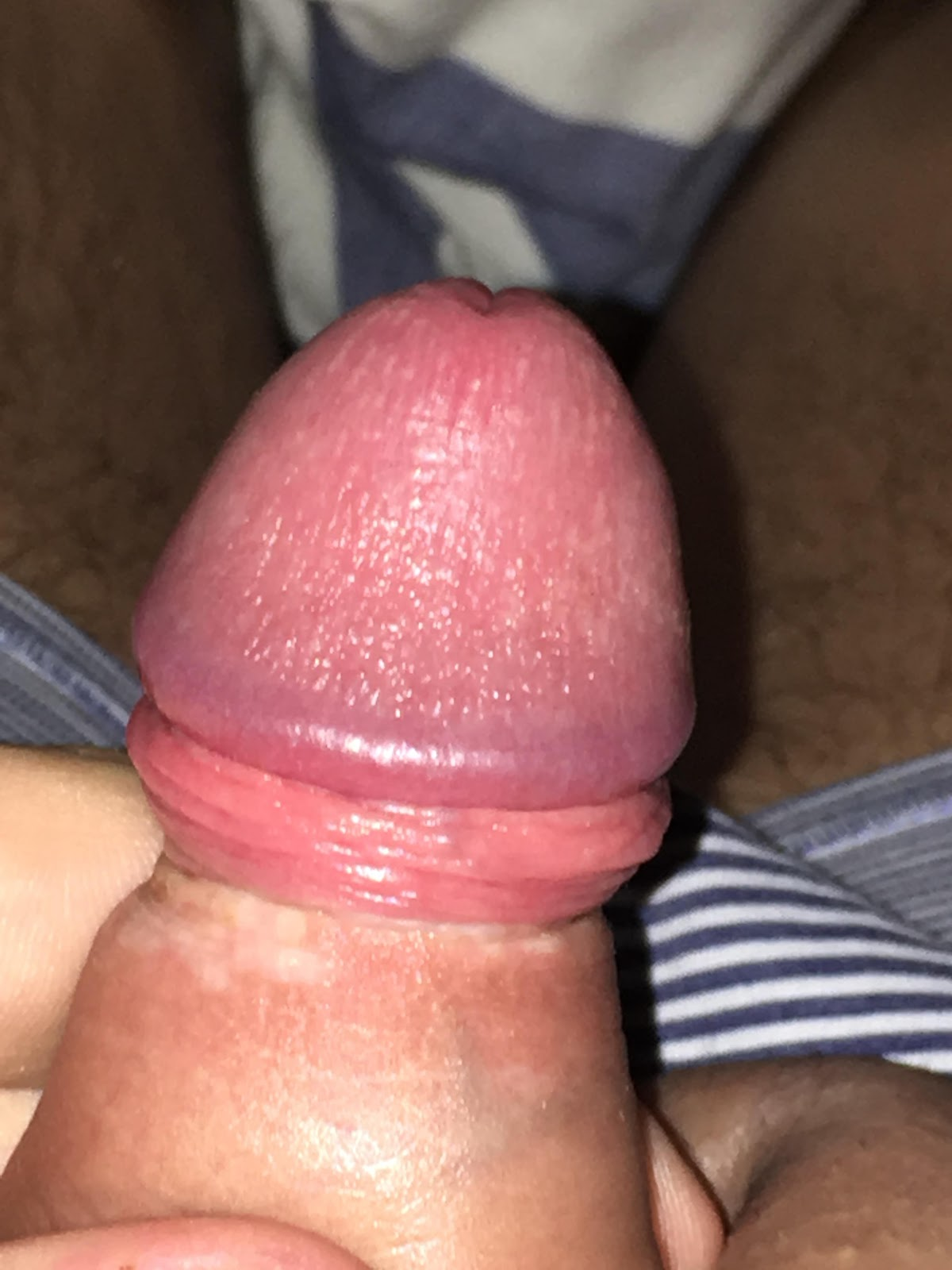 Lichen sclerosis masturbation