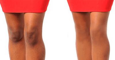 Comment blanchir les genoux rapidement avec cet exfoliant fait maison