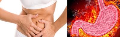 Obat Lambung Ampuh, Cara Meredakan Panas Di Lambung Secara Efektif Dan Cepat 100% Ampuh