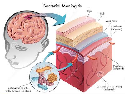 gejala-penyakit-meningitis
